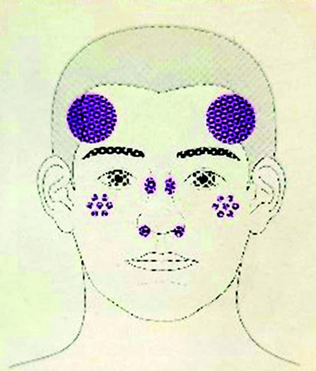 후천양측오타모반양반점은 양측·대칭으로 나타난다.